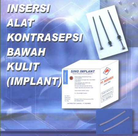 ft-implant